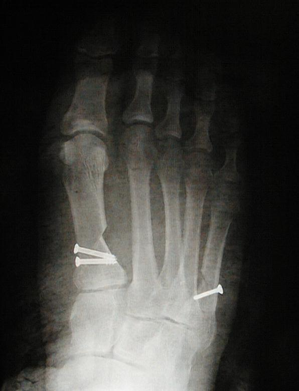 Bunion Procedure