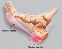Treating plantar fascia pain region in California