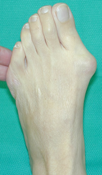 Severe ankle pain after surgery