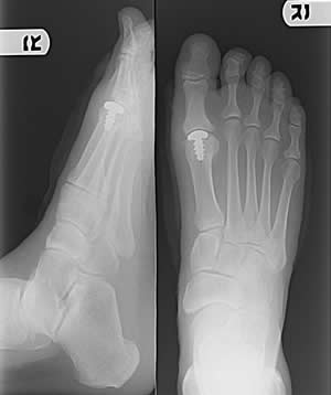 Great toe implant used in hallux limitus/rigidus and great toe arthritis