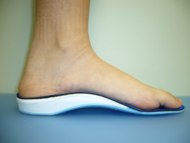 Orthotic used for great toe arthritis, hallux limitus and hallux rigidus