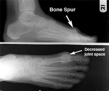 X-ray showing hallux limitus/rigidus with bone spurs and arthritis of the great toe joint