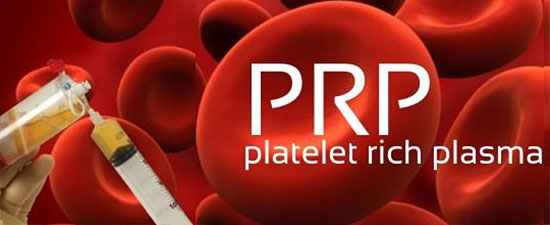 Revolutionary use of Platelet Rich Plasma for Plantar Fasciitis