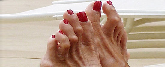 Hammertoe Surgery and Reducing Infections