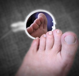 Five essential and easy diabetic foot care tips