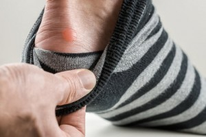 Easy Ways to Treat and Prevent Foot Blisters inside pic