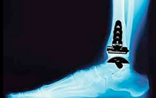 Ankle replacement surgery, STAR, InBone total ankle replacement