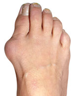 Bunions and Big Toe Arthritis, Foot and Ankle Institute