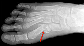 Metatarsal fracture, University foot and ankle institute