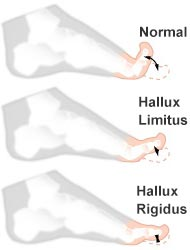Hallux Limitus vs. Hallux Rigidus | Big Toe Arthritis Stages