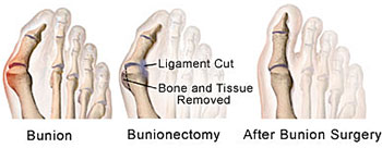 Minimally Invasive Hip Replacement Recovery Time: Recovery