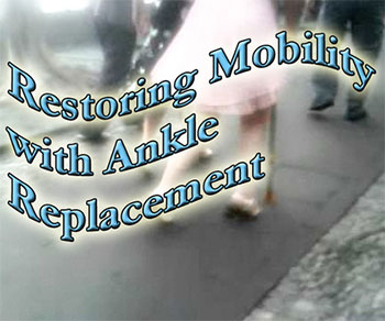 Ankle replacement restores mobility for many.
