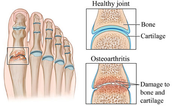 Big Toe Arthritis - University Foot and Ankle Institute - Los Angeles