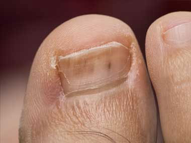 Tiny, red lines under the toenail, University Foot and Ankle Institute