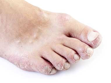 Pitted Toenails, University Foot and Ankle Institute