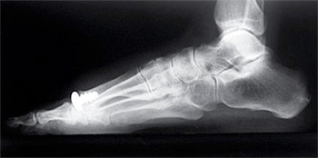 Arthrosurface: Hallux Rigidus (Big Toe Arthritis) Treatment
