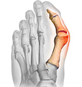 Bunion Hallux Valgus Los Angeles