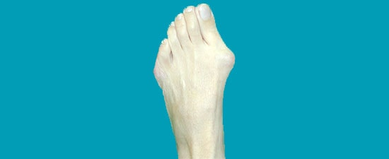 Bunion Surgery: What To Know Beforehand