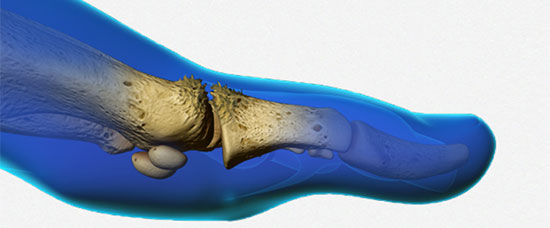 Big Toe Arthritis – Advancements in Treatments
