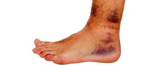 Stay Strong and Able With These Advanced Chronic Ankle Instability Treatments