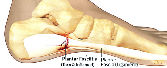 Treating Plantar Fasciitis: What Works, What Does Not!