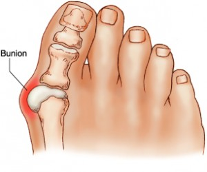 Pregnancy Feet and Bunion Treatment