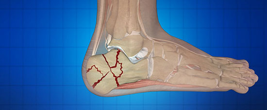 Our Dr.'s Most Interesting Cases: the Heel that wouldn't Heal!