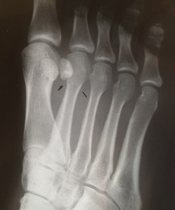 Stress Fracture, metatarsal fracture