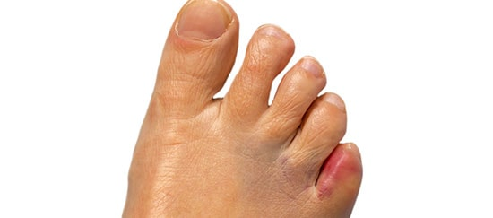 There's nothing you can do for a broken toe…Or is there?
