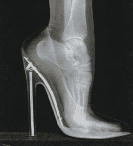 x-ray+of+a+foot+in+high+heels