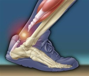 Achilles Tendon Rupture Minimally Invasive Treatment