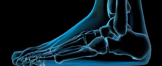 Ankle Arthritis and Ankle Replacement, UFAI's Next Free Seminar!