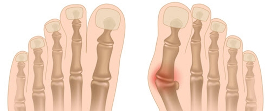 X-ray of normal foot and bunion