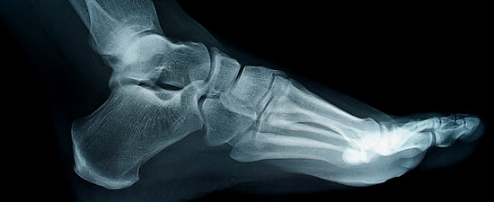 Weight-Bearing 3D CT Technology Revolutionizes Foot and Ankle Surgery