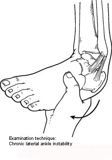 Watch Out for Repeated Ankle Sprains: The Ankle Can Eventually Give Way to Chronic Ankle Instability