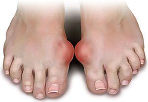 Gout and Risk of Heart Disease