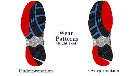 Over-under pronation wear patterns in shoes
