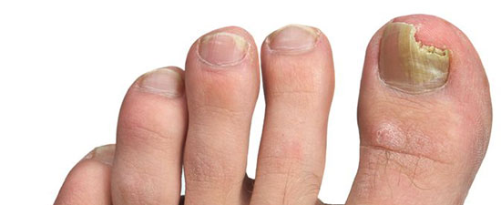 How do you know if you have toenail fungus?