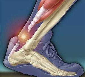 Cortisone Injections and tendon damage