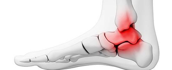 Can Waiting to See Your Foot Doctor about a Bad Ankle Today Bring on Arthritis Tomorrow? YES!