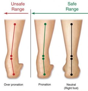 Overpronation treatment, University Foot and Ankle Institute