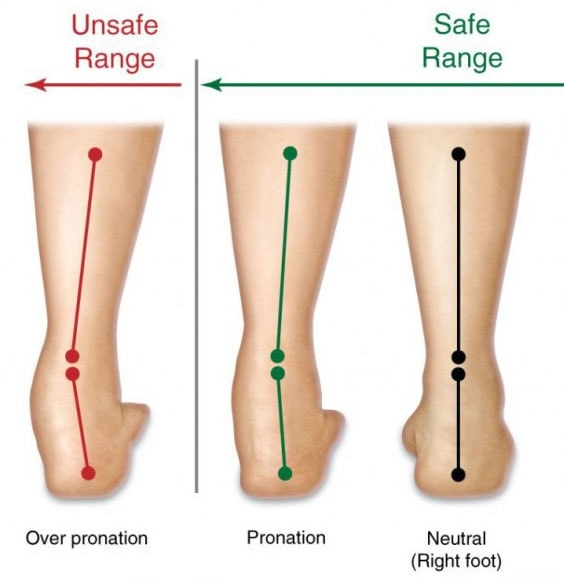 Overpronation What Is It And How Can You Correct It