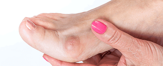 The 11 Most Common Foot Lumps and Bumps Explained and What You Can Do About Them
