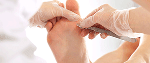 Callus Removal, Foot and Ankle Specialists Los Angels