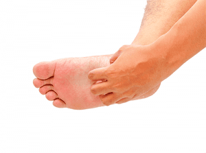 Itchy Feet, Eczema on Foot, University Foot and Ankle Institute Los Angeles
