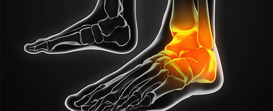 Is Microfracture Obsolete For Osteochondral Lesions Of The Talus?