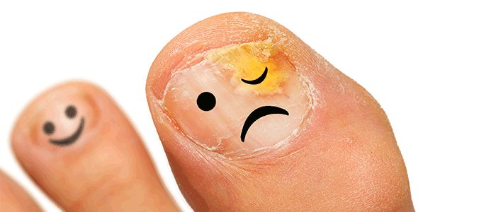 My toenail is falling off, Los Angeles Podiatrist