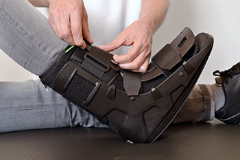 Stress Fracture Treatment, Podiatrist Los Angeles
