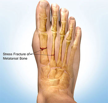 Stress Fracture, Podiatrist Los Angeles