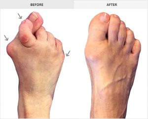 Best Bunion Surgeon, Before and after Bunion surgery pictures